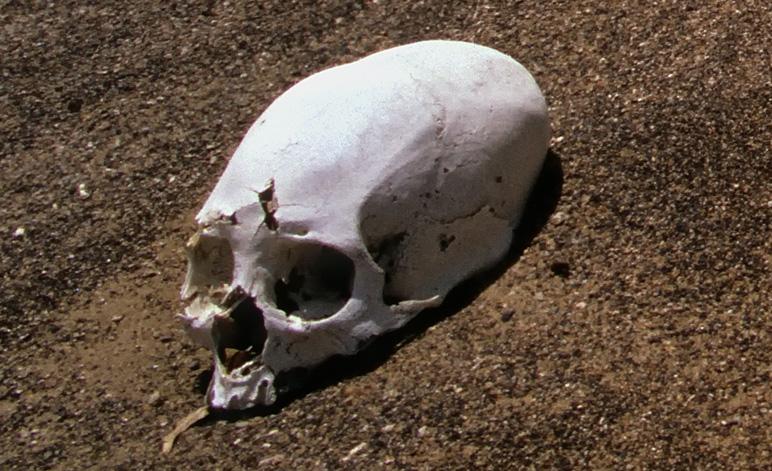 Weird Skull Elongated