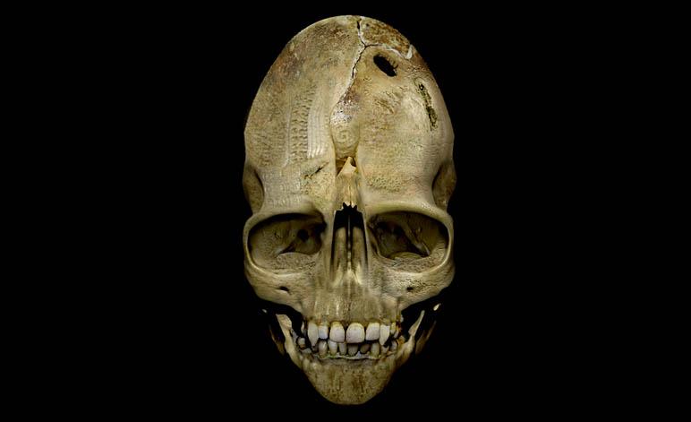 Weird Andover Skull